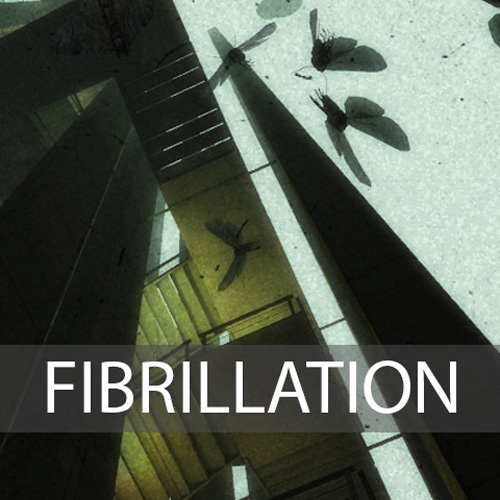 Buy Fibrillation CD Key Compare Prices